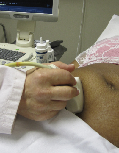 Ultrasound being performed at Her Choice Birmingham